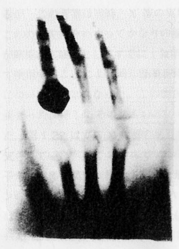 ベルタ夫人の手